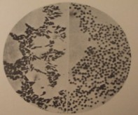 TULISOC-Logo: Historical picture of Francisella tularensis